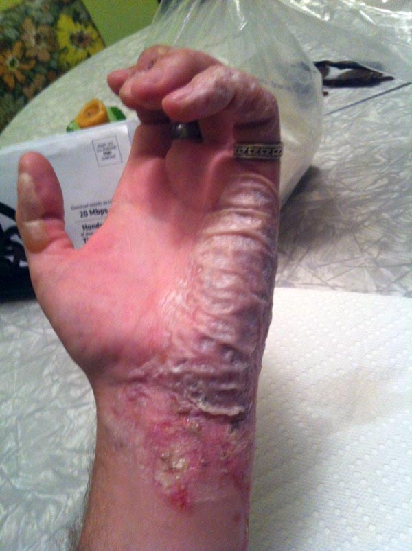burnt-hand (6)
