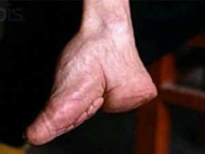 Bizarre Foot Binding In China (19 photos) 1