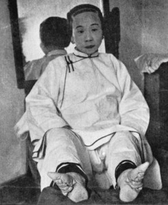 Bizarre Foot Binding In China (19 photos) 10