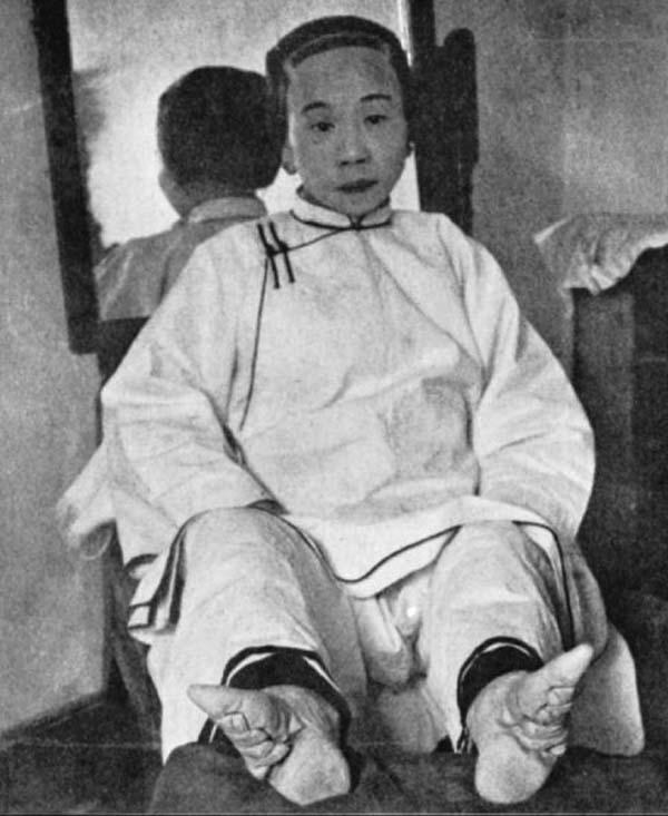 foot-binding-china (10)