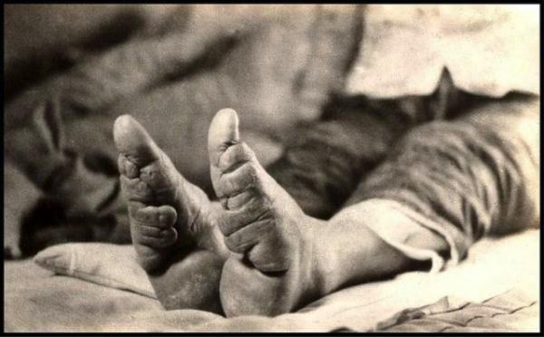 foot-binding-china (11)
