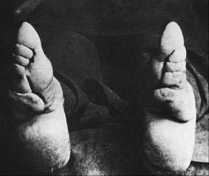Bizarre Foot Binding In China (19 photos) 12