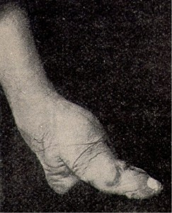 Bizarre Foot Binding In China (19 photos) 13