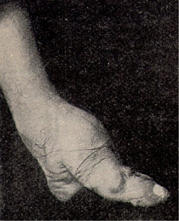 foot-binding-china (13)