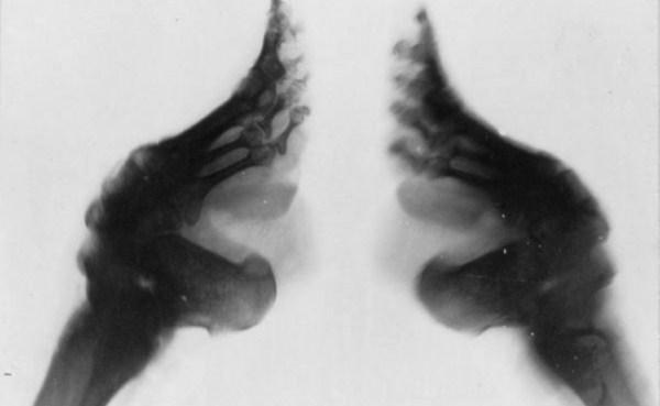 foot-binding-china (16)