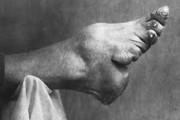 foot-binding-china (19)