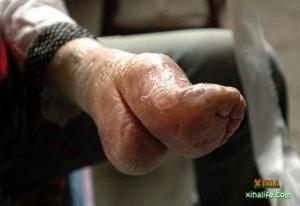 Bizarre Foot Binding In China (19 photos) 2