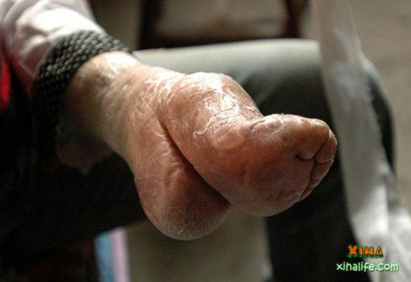 foot-binding-china (2)