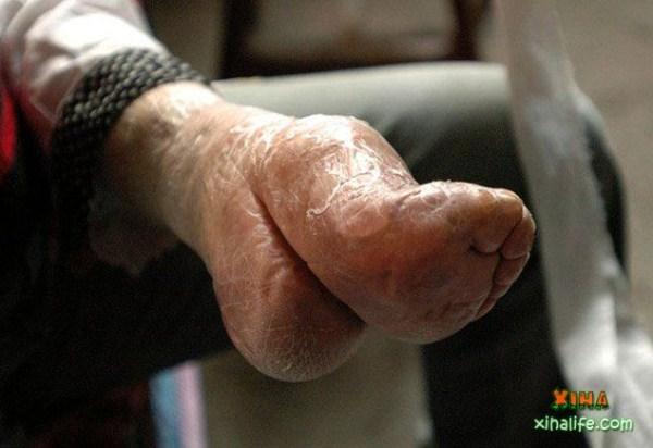 foot-binding-china (2)