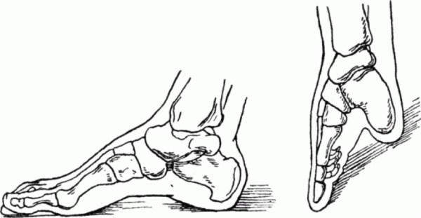 foot-binding-china (6)