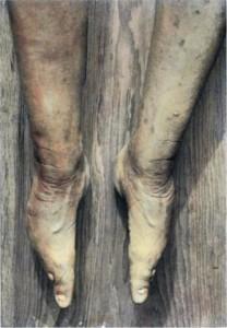 Bizarre Foot Binding In China (19 photos) 8