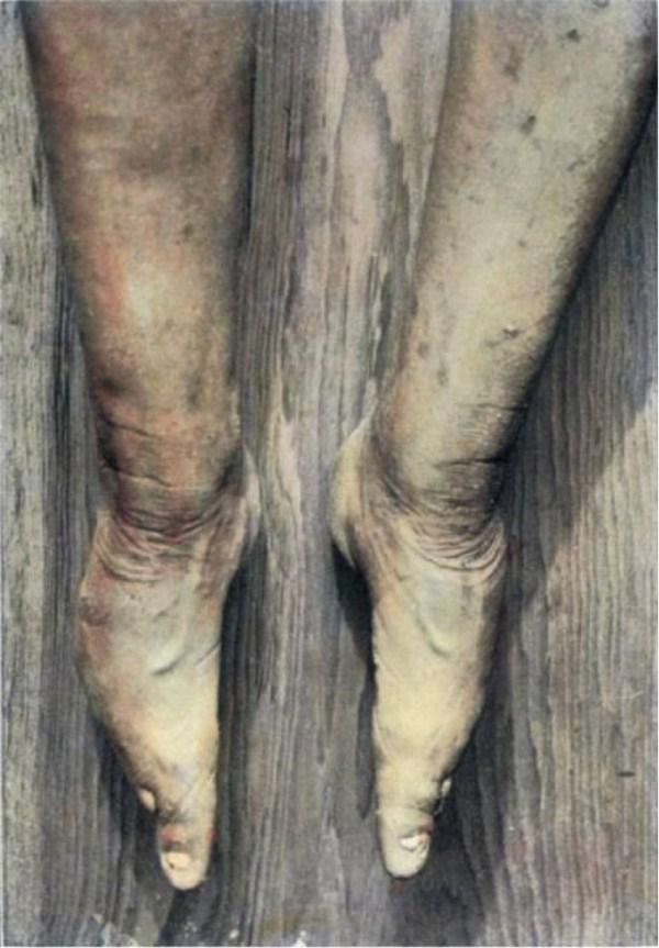 foot-binding-china (8)
