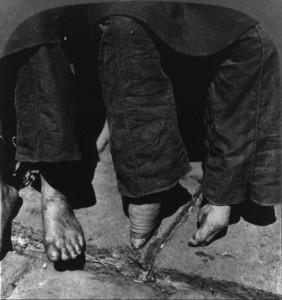 Bizarre Foot Binding In China (19 photos) 9
