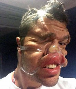 Sellotape Selfies Are the Latest Internet Trend (35 photos) 5