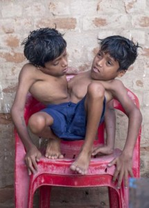 Indian Conjoined Twins Who Are Worshipped As Gods (13 photos) 1