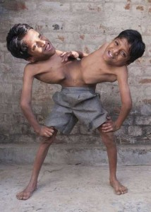 Indian Conjoined Twins Who Are Worshipped As Gods (13 photos) 12