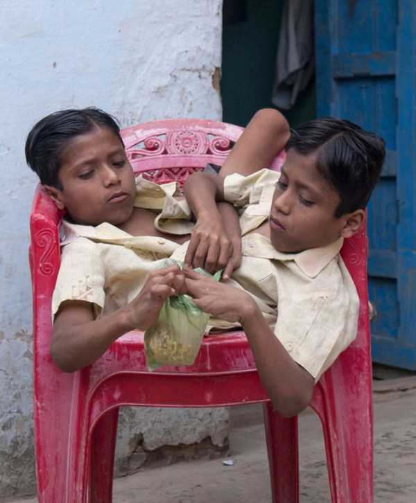 indian-conjoined-twins (13)