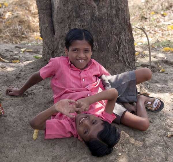 indian-conjoined-twins (5)