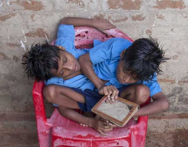 indian-conjoined-twins (8)
