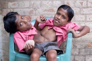 Indian Conjoined Twins Who Are Worshipped As Gods (13 photos) 9
