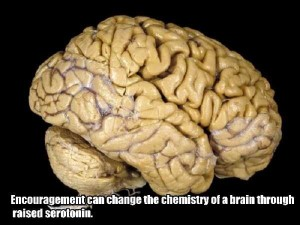 25 Things You Probably Didn't Know About The Human Brain (25 photos) 19