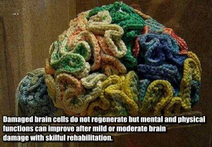25 Things You Probably Didn't Know About The Human Brain (25 photos) 8