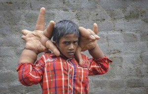 The Boy With Abnormally Large Hands (17 photos) 2