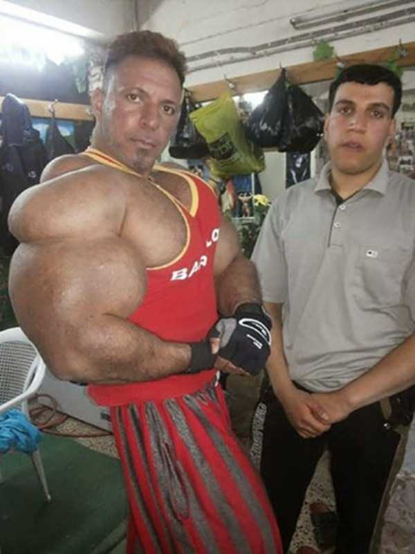this-guy-uses-way-too-much-synthol-10