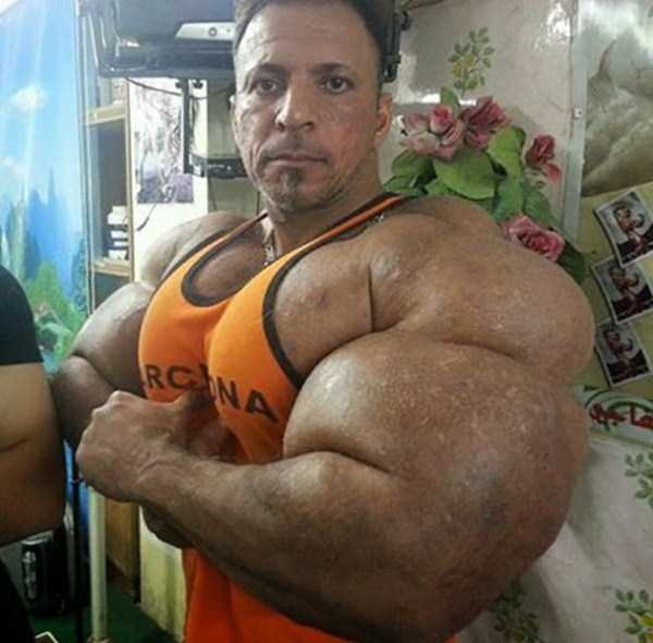 this-guy-uses-way-too-much-synthol-11