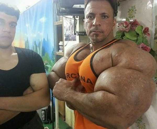 this-guy-uses-way-too-much-synthol-12