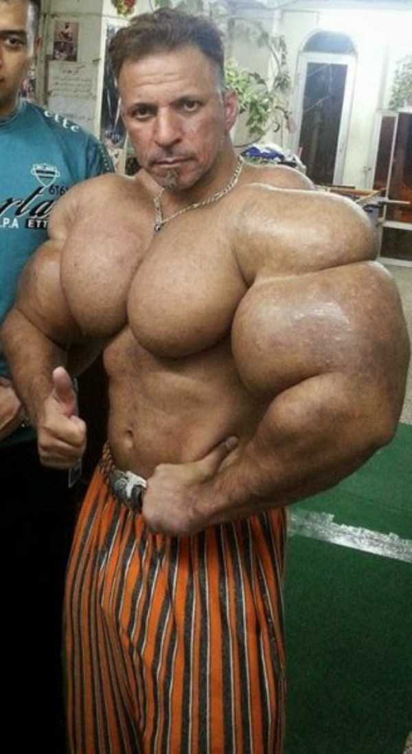 this-guy-uses-way-too-much-synthol-13