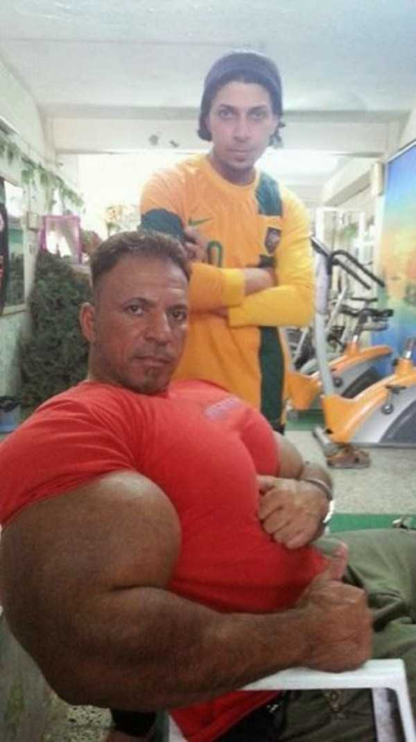 this-guy-uses-way-too-much-synthol-14