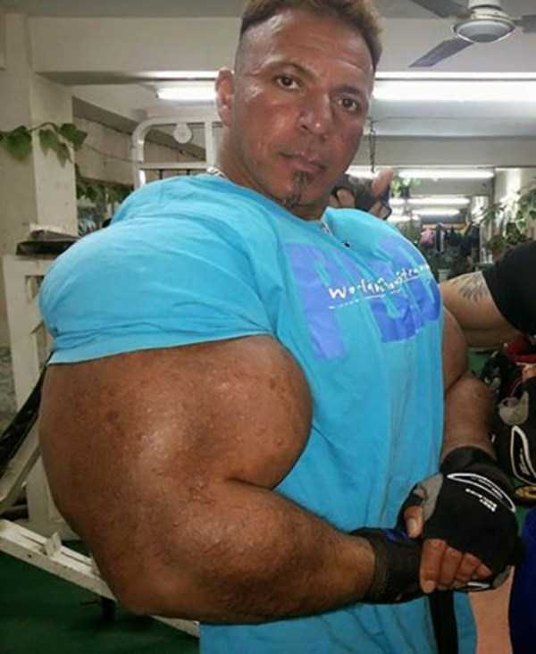 this-guy-uses-way-too-much-synthol-16