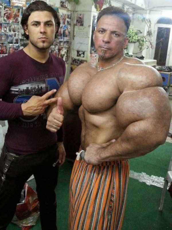 this-guy-uses-way-too-much-synthol-17