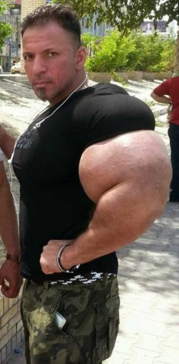 this-guy-uses-way-too-much-synthol-18