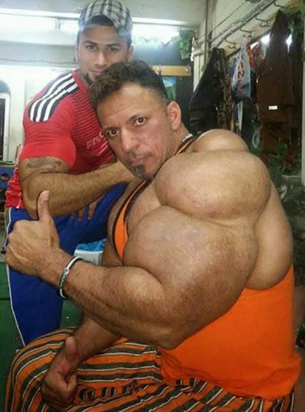 this-guy-uses-way-too-much-synthol-19