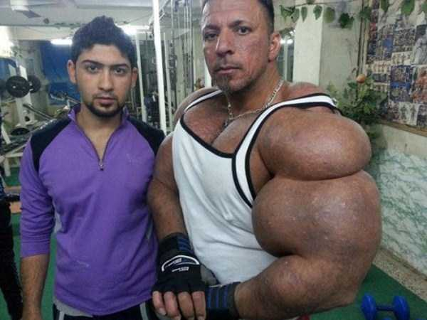 this-guy-uses-way-too-much-synthol-2