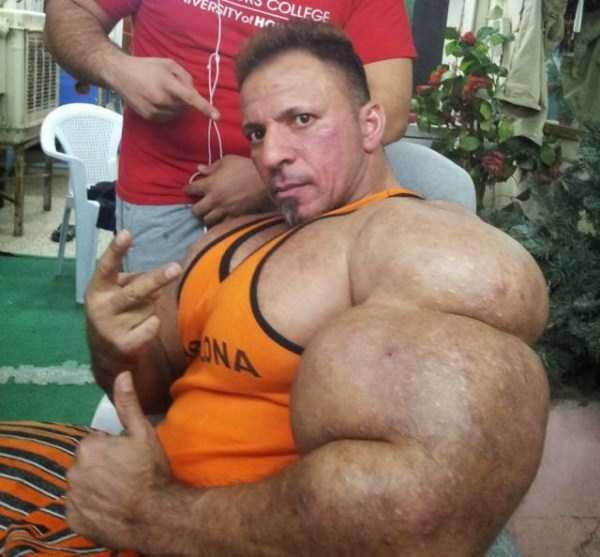 this-guy-uses-way-too-much-synthol-20
