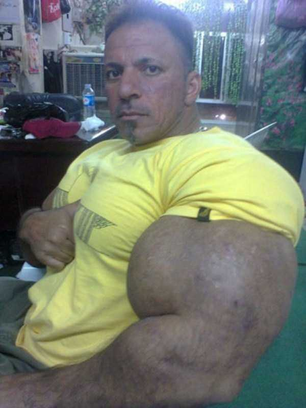 this-guy-uses-way-too-much-synthol-3
