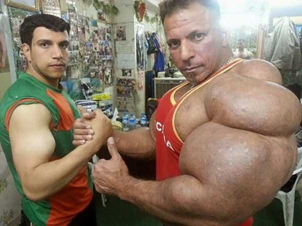 this-guy-uses-way-too-much-synthol-4