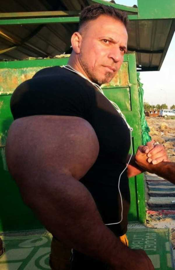 this-guy-uses-way-too-much-synthol-5