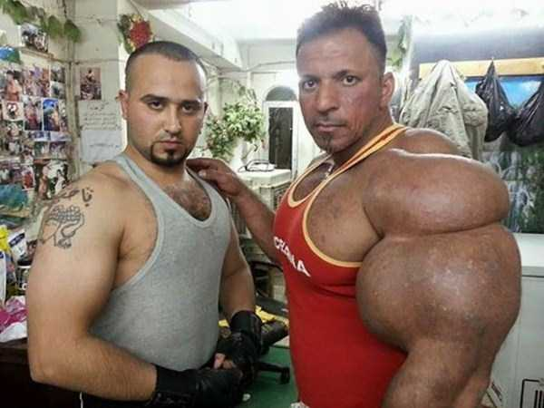 this-guy-uses-way-too-much-synthol-7