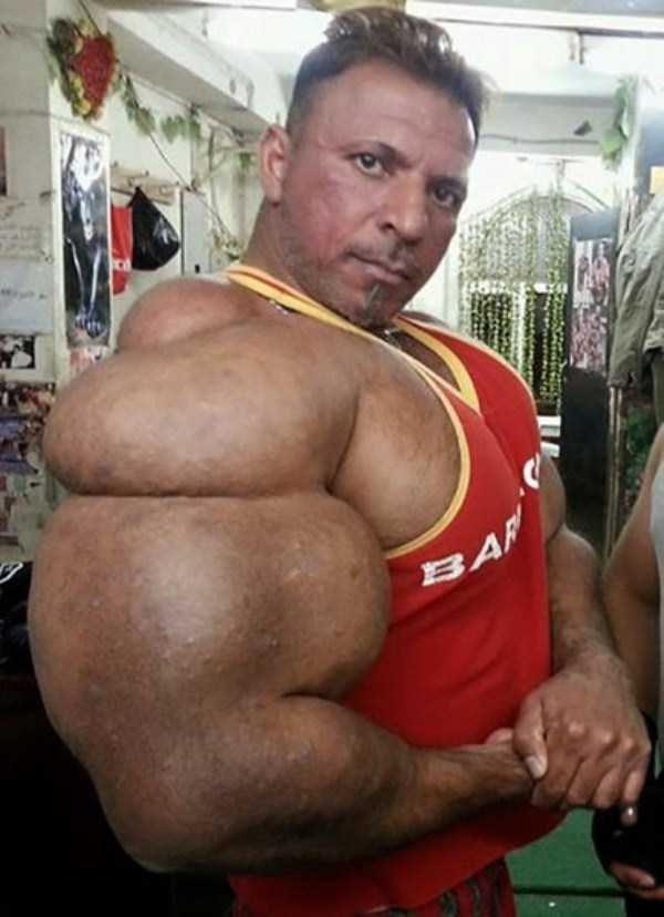 this-guy-uses-way-too-much-synthol-8