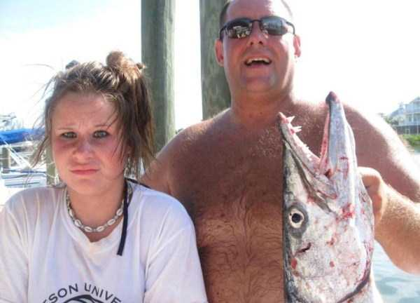 Incredibly Bizarre Fishing Accident (6 photos) 6