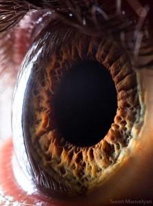 Human Eye Under a Microscope (21 photos) 12