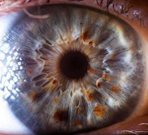 Human Eye Under a Microscope (21 photos) 21