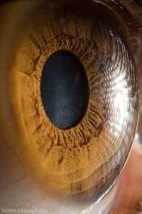 Human Eye Under a Microscope (21 photos) 3