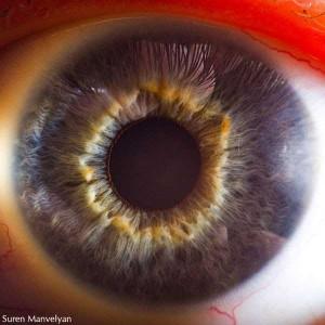 Human Eye Under a Microscope (21 photos) 4