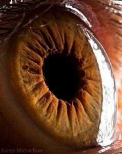 Human Eye Under a Microscope (21 photos) 7