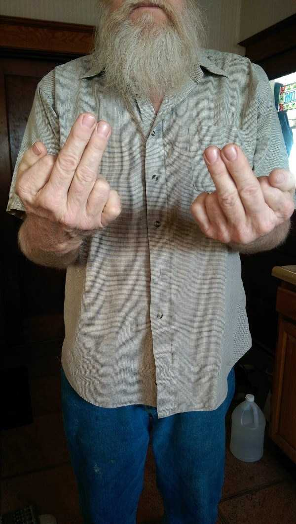 man-with-six-fingers (1)